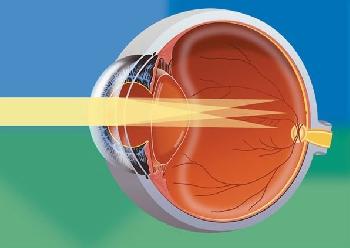 Бесплатно улучшить зрение онлайн